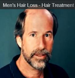 Mens Hair Loss - Hair Treatment & Resotration For Men - Nutreve - John - Vincent